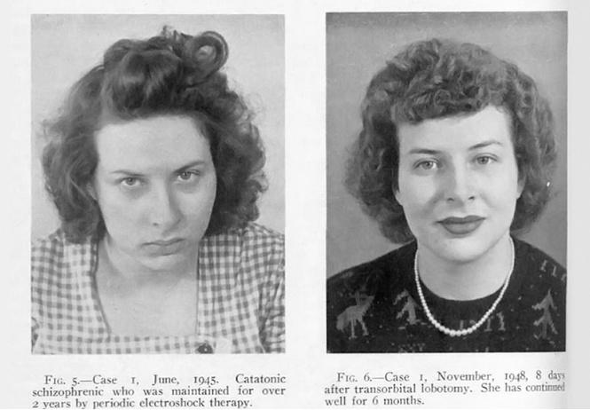 Фотографии пациентов до и после лоботомии