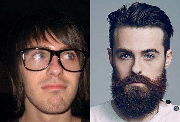 Как меняет людей борода: 26 убедительных фотодоказательств «до и после»