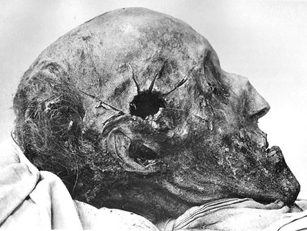 Глаза Эйнштена и другие легендарные части тела великих людей