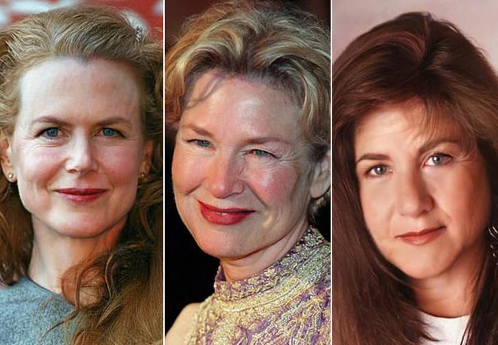 Фото №1 - Пластический хирург показала, как старели бы знаменитости, будь они простыми людьми
