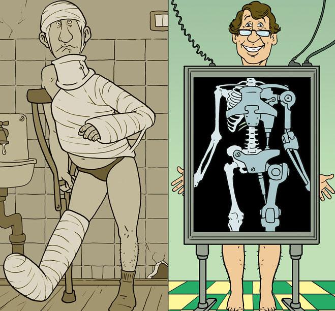 Перелом какой-нибудь кости - методы лечения