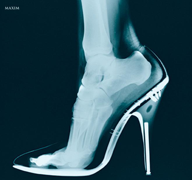 Рентген ноги в туфлях на шпильке