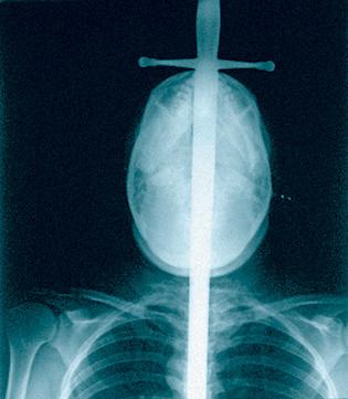 Рентген шпагоглотателя