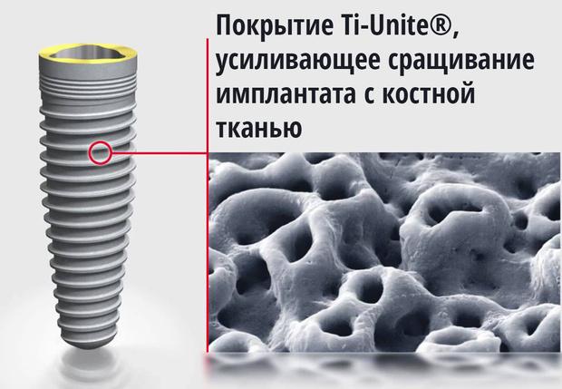 Фото №2 - Чем отличаются различные покрытия имплантов и кое-что о зубных мошенниках