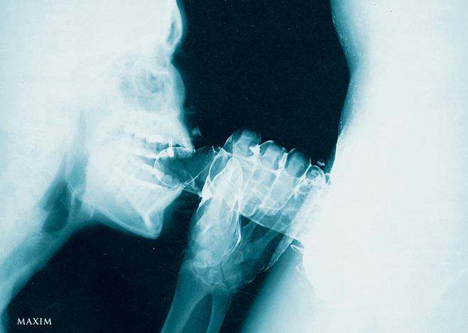 рентгеновский снимок орального секса