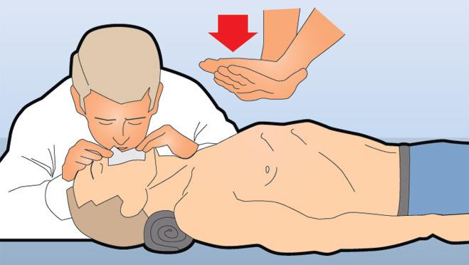 Сделать непрямой массаж сердца