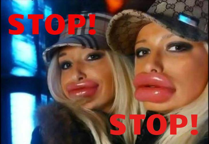 Фото №1 - Девушки, перестаньте накачивать губы!