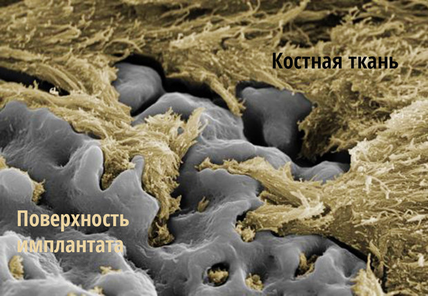 Фото №3 - Чем отличаются различные покрытия имплантов и кое-что о зубных мошенниках