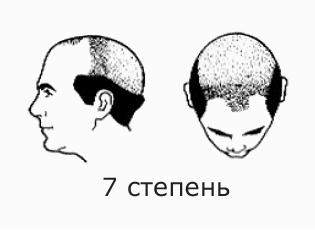 Фото №10 - На волосок от смерти