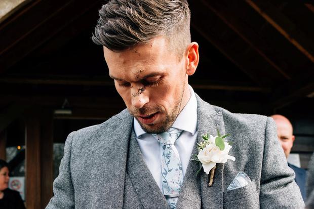 Фото №2 - Накануне свадьбы жениху порезали лицо и наложили 14 швов, но он все равно женился