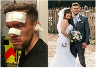 Накануне свадьбы жениху порезали лицо и наложили 14 швов, но он все равно женился