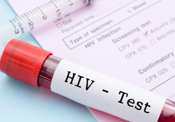 Фото №1 - Вакцина от ВИЧ прошла ключевые тесты, ее готовят к клиническим испытаниям