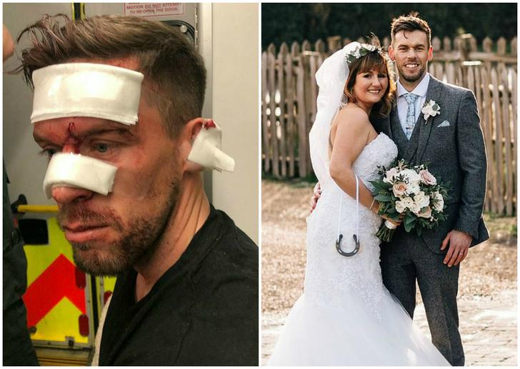 Фото №1 - Накануне свадьбы жениху порезали лицо и наложили 14 швов, но он все равно женился