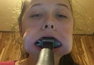 Девочка на спор засунула в рот молоток и не смогла его вытащить