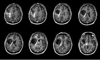 Китайский искусственный интеллект лучше врачей диагностирует раковые опухоли