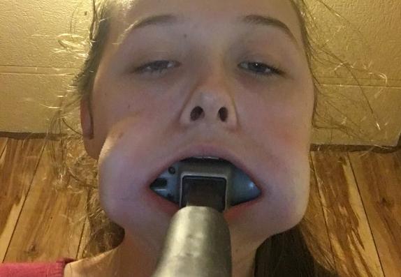 Фото №1 - Девочка на спор засунула в рот молоток и не смогла его вытащить