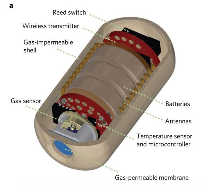 Новости высоких технологий: проглоти таблетку и проконтролируй выделение газов со смартфона