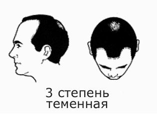 Фото №6 - На волосок от смерти
