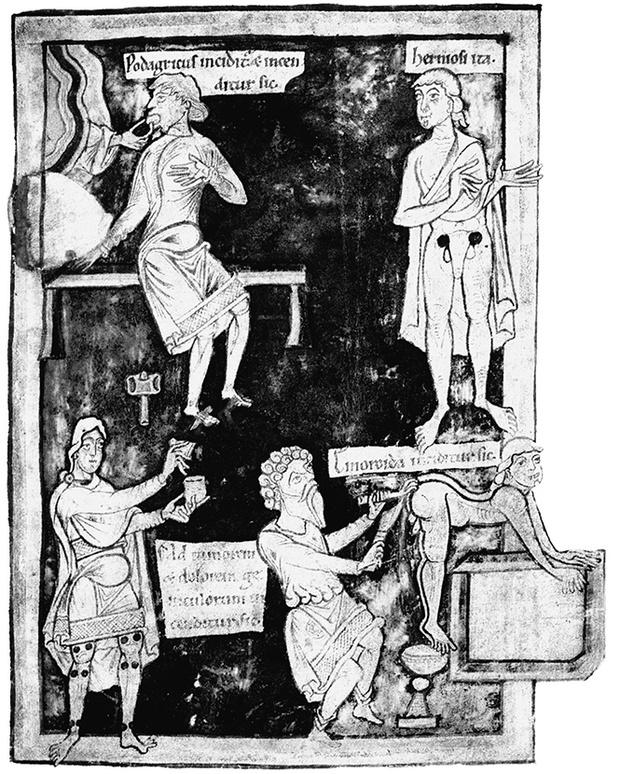 Фото №11 - Слабоумие и отвары: чем лечились от всяких холер наши предки до изобретения анальгина иалка-зельтцера