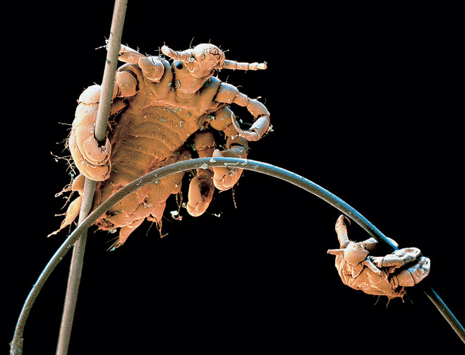 Лобковая вошь Phthirus pubis