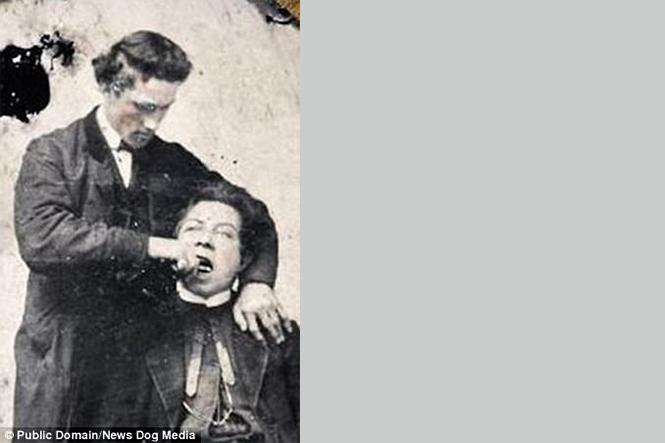 Фото №7 - Ужасы викторианской стоматологии: 13 фотографий без анестезии