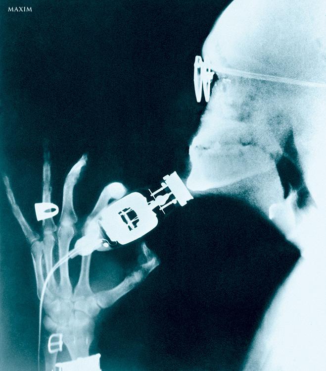 Рентгеновский снимок бритья
