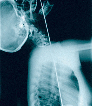 Оральный секс рентген