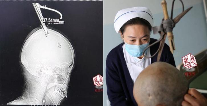 Фото №1 - Женщина с ножницами в голове приехала в больницу на автобусе