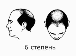 Фото №9 - На волосок от смерти