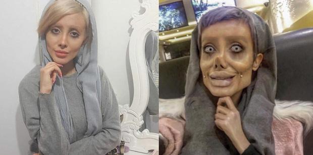 Фото №1 - Женщина из Ирана сделала 50 операций, чтобы стать похожей на Анджелину Джоли