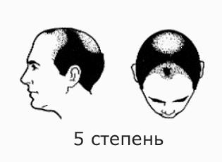 Фото №8 - На волосок от смерти