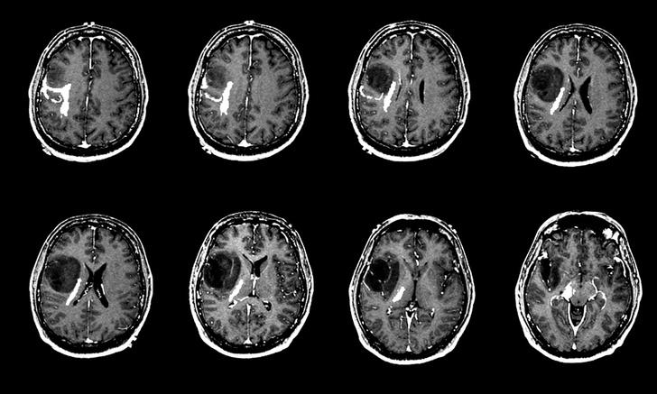 Фото №1 - Китайский искусственный интеллект лучше врачей диагностирует раковые опухоли
