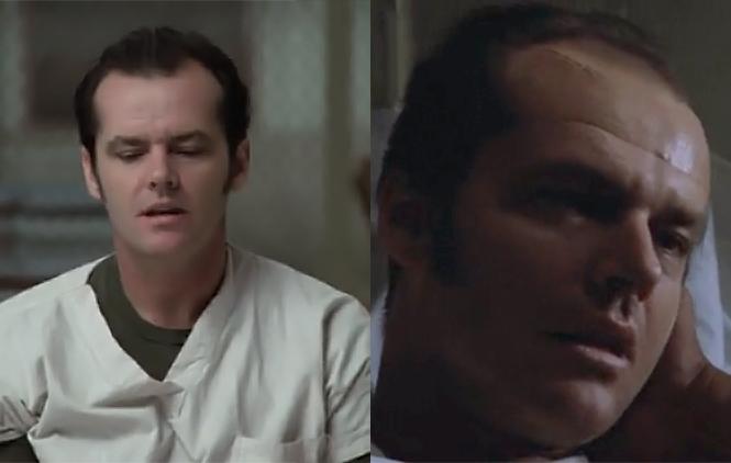 Фото №1 - Фотографии пациентов до и после лоботомии