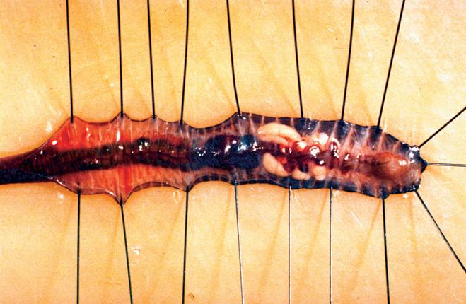 Сердце червяка