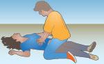 Механическая асфиксия