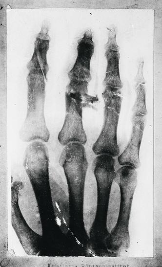Фото №3 - Эдвард Мунк: «Крик», простреленный палец и полгода в психушке