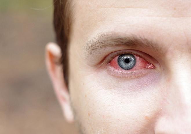 Фото №1 - 6 способов снять усталость глаз