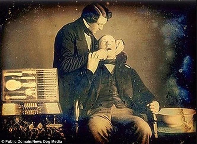 Фото №9 - Ужасы викторианской стоматологии: 13 фотографий без анестезии