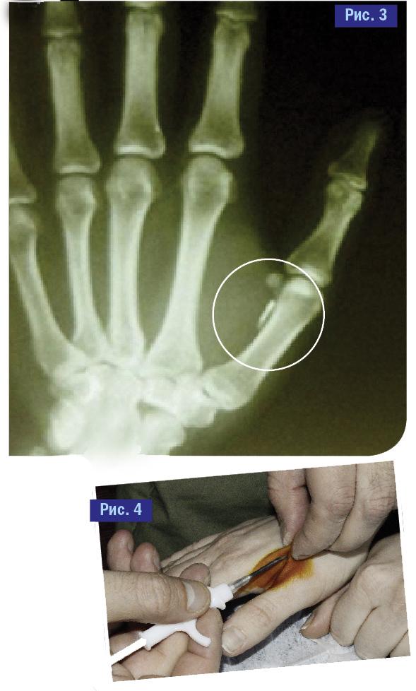Фото №4 - Испытано на себе! Каково это — жить с электронным чипом в руке? И, главное, зачем?