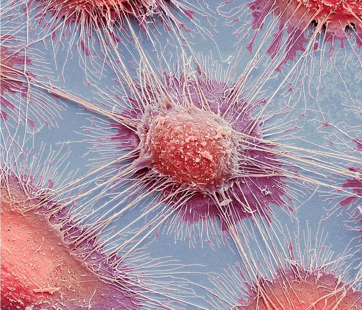 Фото №1 - Ученые придумали эффективный способ «усыплять» рак