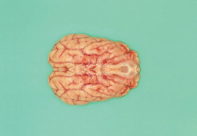 Мозг vs. Субботний вечер