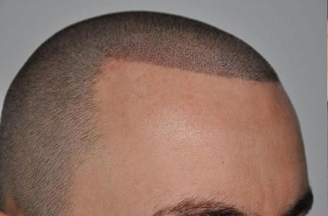 Если набить тату волосы растут