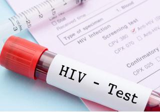 Вакцина от ВИЧ прошла ключевые тесты, ее готовят к клиническим испытаниям