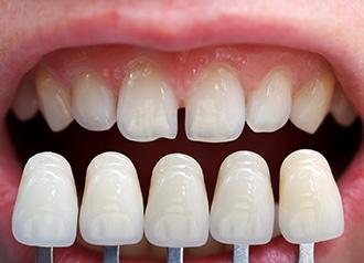 Напасть: как выпрямить кривые зубы