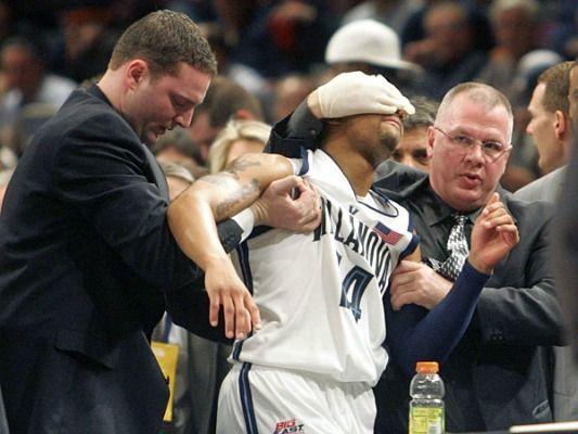 Фото №4 - Самые жуткие травмы в истории спорта