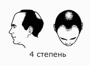 Фото №7 - На волосок от смерти
