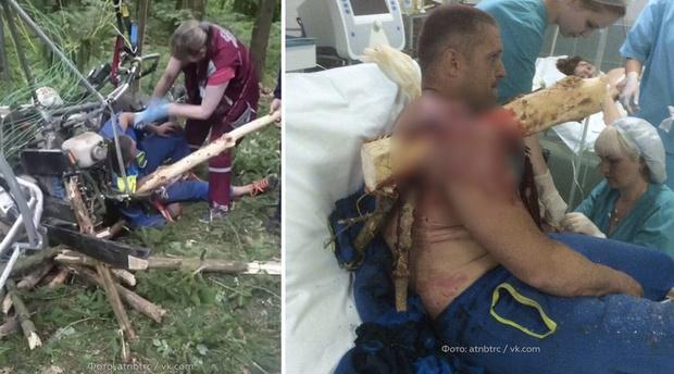 Фото №3 - Белорус насадил себя на дерево, когда упал с паратрайка
