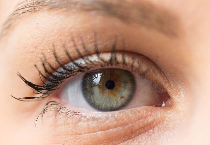 Фото №1 - Девушка сделала неудачную татуировку белка глаза и выложила леденящие душу фото в Сеть