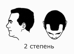 Фото №4 - На волосок от смерти