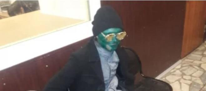 Фото №1 - Краснодарец измазался зеленкой, чтобы безнаказанно совершить преступление